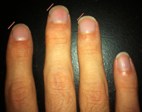 nails-w-lines